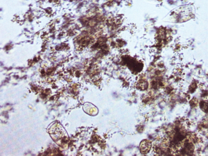 Mikroorganismen (Belebtschlamm)