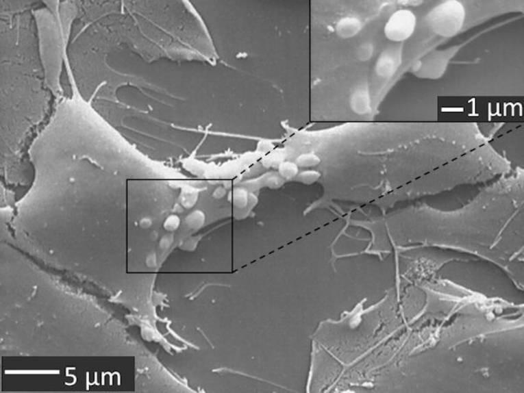 Mit einem Rasterelektronenmikroskop gemachte Aufnahme