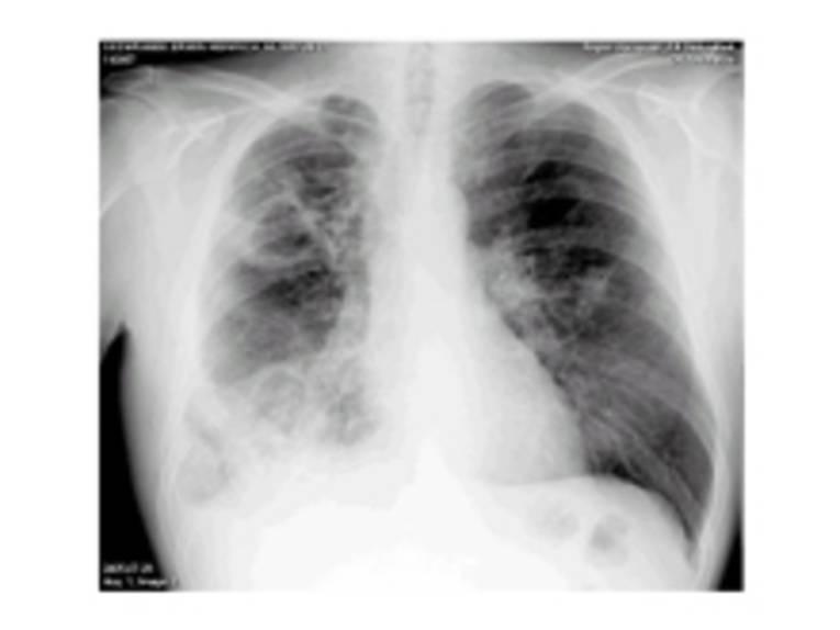 Lungentuberkulose