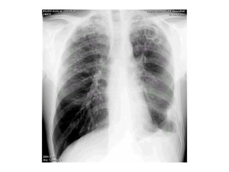 Röntgenbild fortgeschrittene Lungentuberkulose - Zerstörung des Lungengewebes