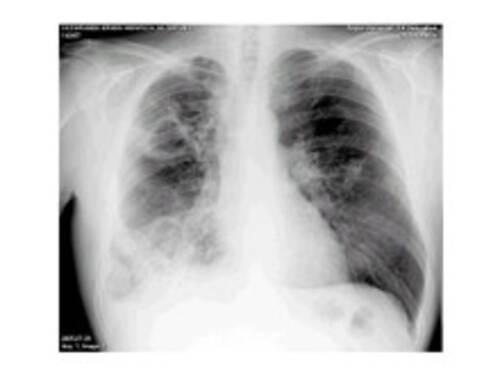 Team Infektionsschutz TBC | Fachbereich Gesundheit | Dezernat ...